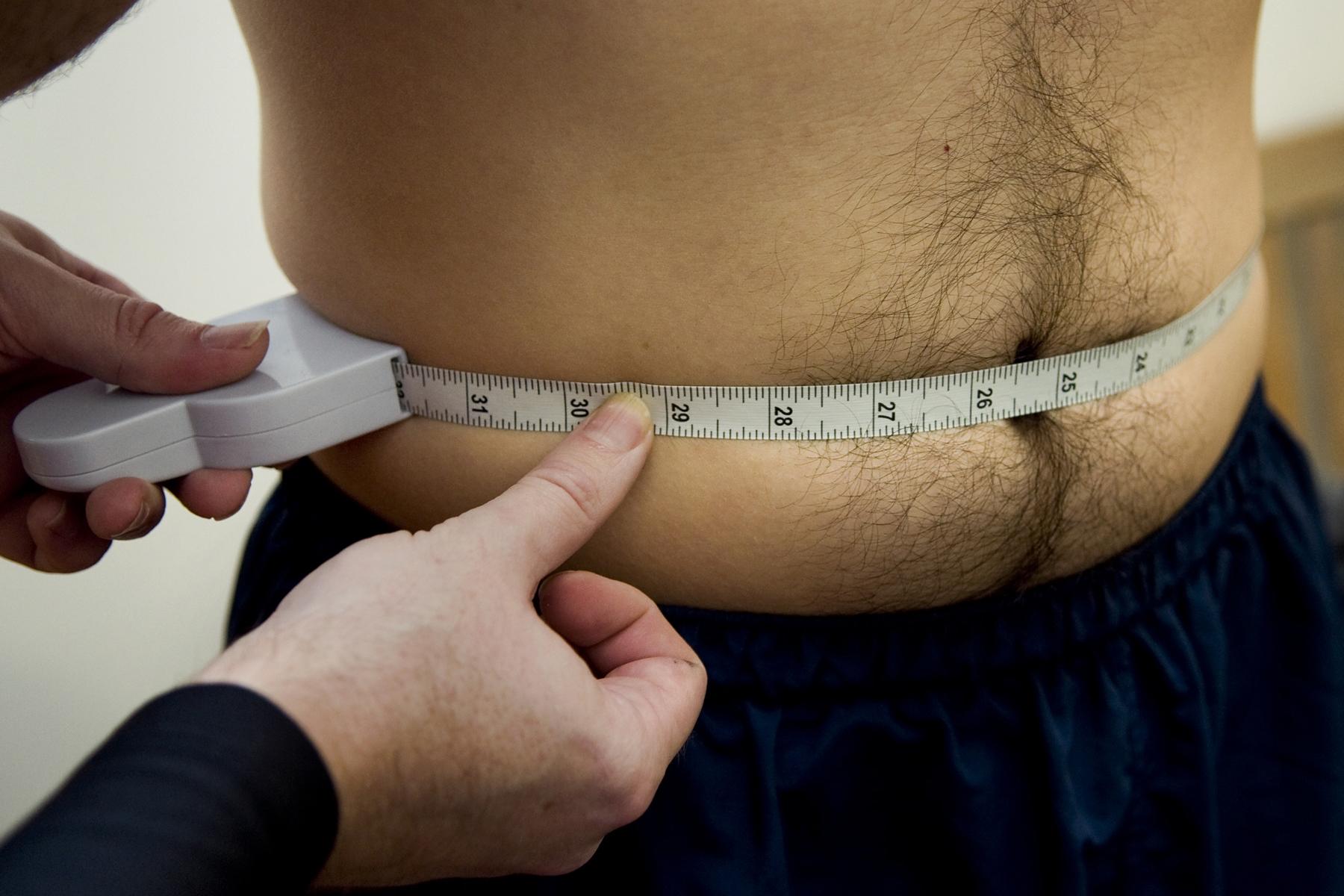 ¿Qué más hay que saber sobre obesidad?
